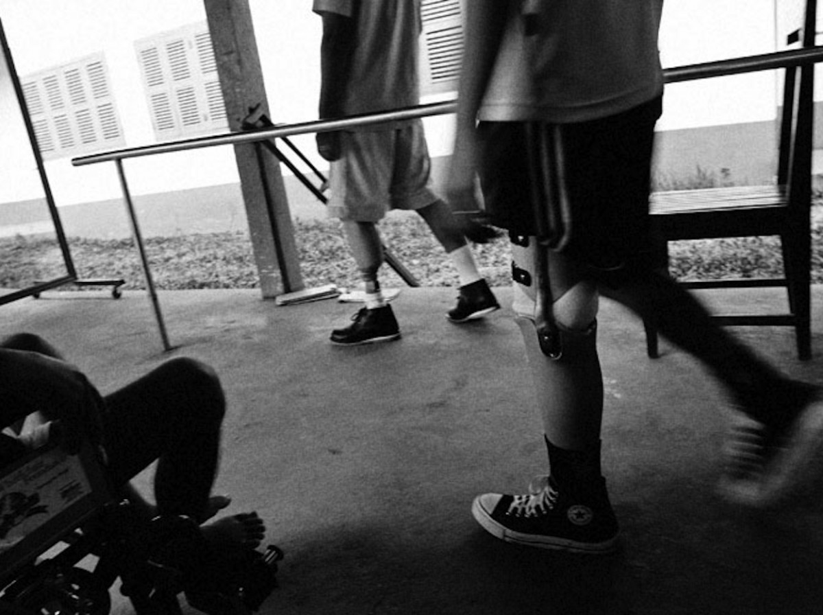 Two people undergoing physical rehabilitation in Laos. Both are wearing a prosthetic leg. Photo Andrew McConnell